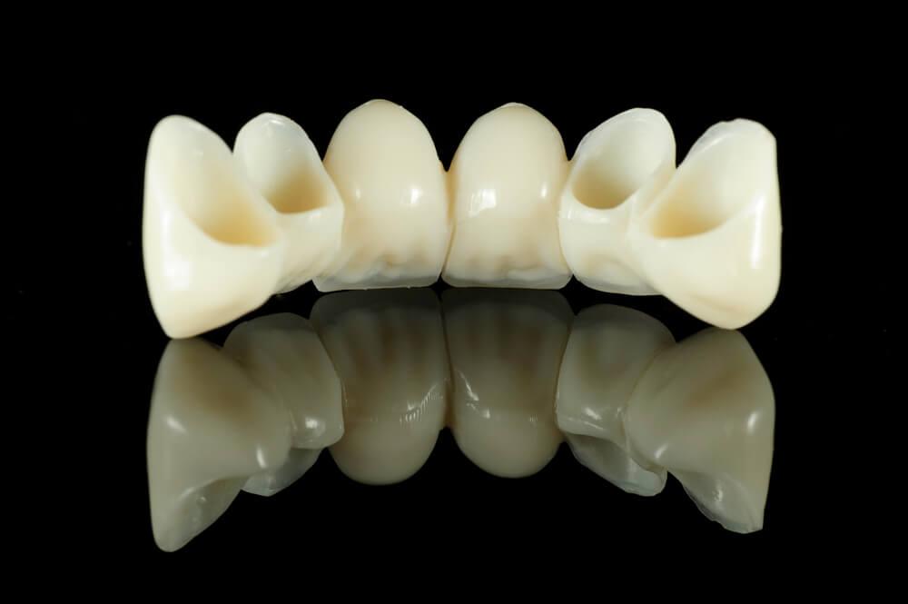 Dental Bridges available in Burbank CA