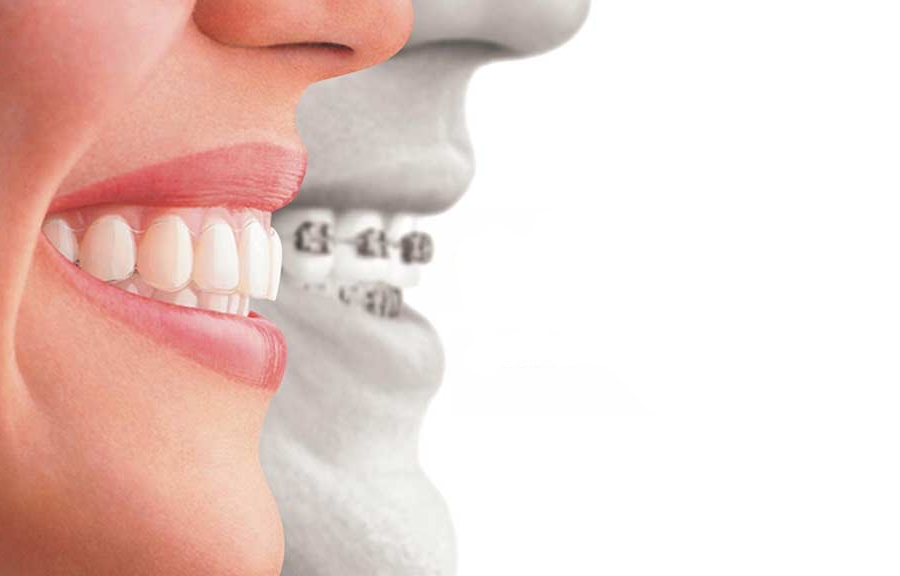 Invisalign® Vs. Braces