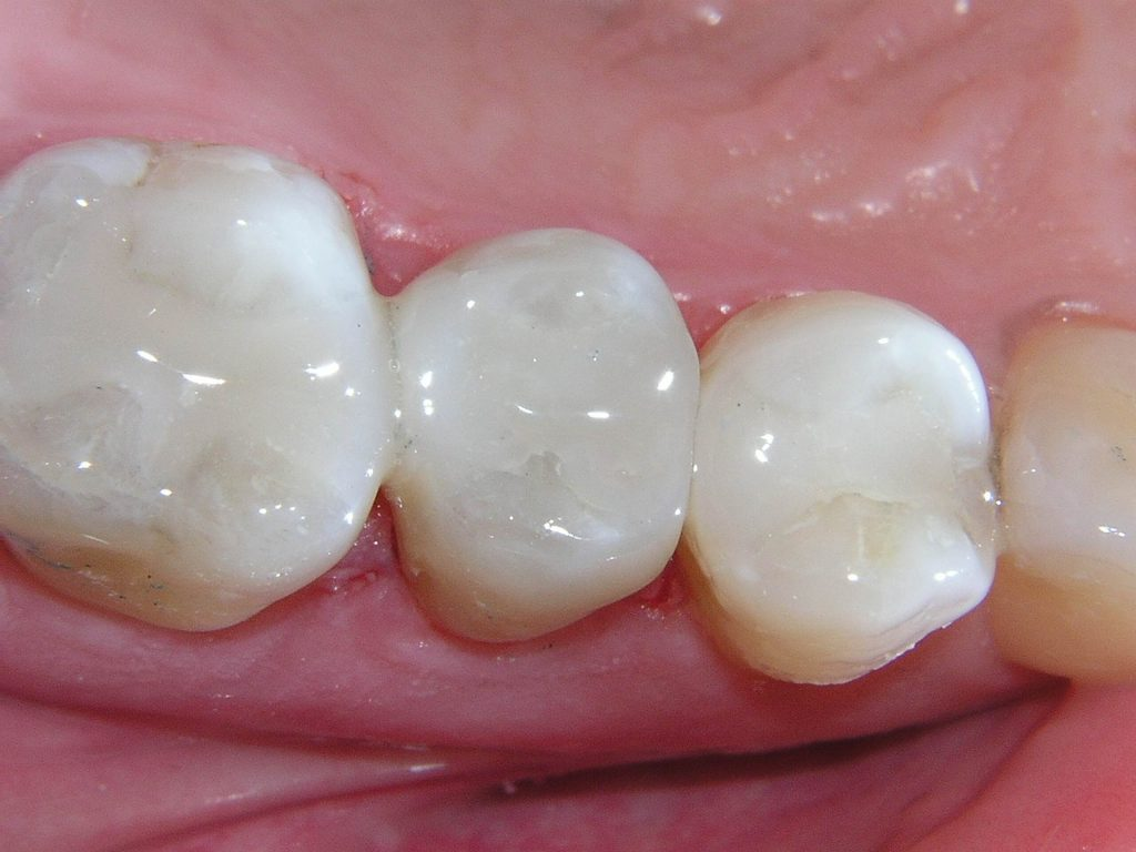 Tooth colored (composite) fillings