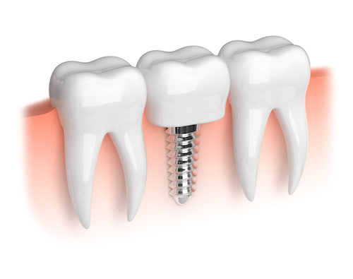 Dental Implants by Dr. Vazira
