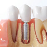 Are There Any Risks of Dental Implants? What to Expect from the Process