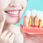 What Are Dental Implants? Here's Everything You Need to Know